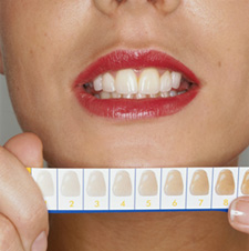 teeth_whitening_clip